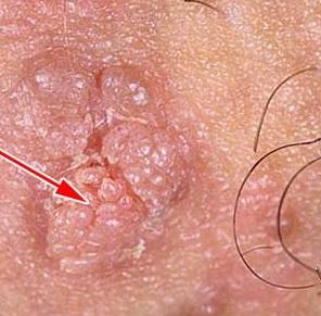 Фото: Папилломавирусная инфекция код по мкб 10