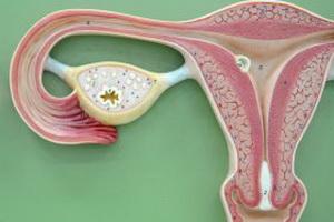 Чем опасна гиперплазия эндометрия матки
